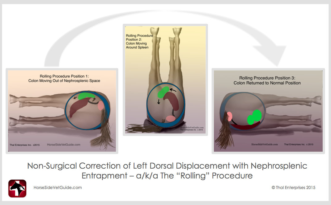 Quot Rolling Quot Procedure Non Surgical Correction Of Ldd With