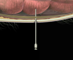 Insertion Sterile Tube for Belly Tap Glass Horse