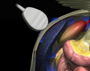 Ultrasound Spleen Glass Horse
