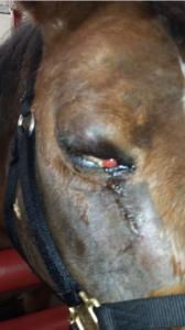 Orbital Cellulitis Squinting Eye Injury
