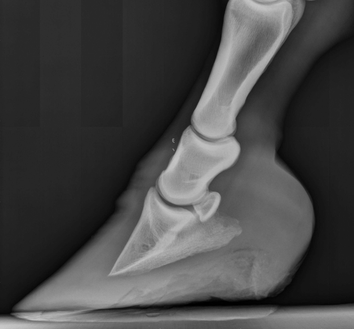 Radiograph - Laminitis, Mild Rotation