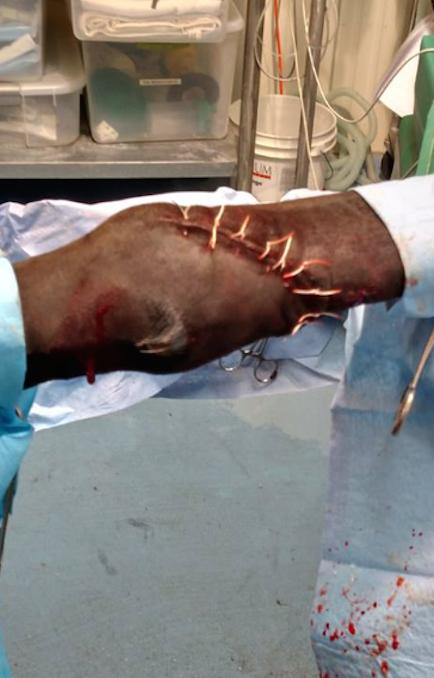 Flexor Tendon Injury Fully Repaird Before Casting