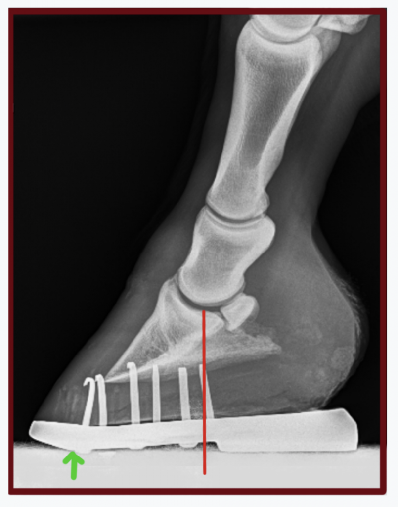 Here, a similar shoe with more wedge, improved center of rotation and breakover moved back further. The horse was still not very comfortable.