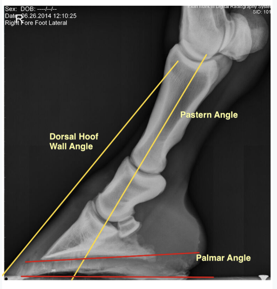In contrast, A side (lateral) view of a limb showing ideal alignment of dorsal hoof wall and pastern angles.