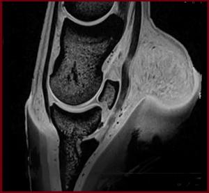 3 DT modified MRI distal limb navicular