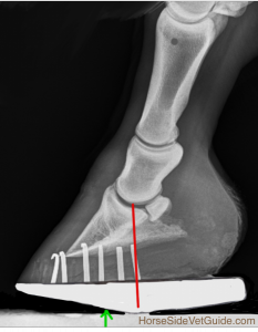 Radiograph showing mechanics of the roller motion shoe, one way to address navicular syndrome.